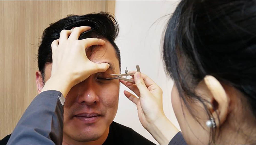 Allure Rudy Ptosis Surgery 7