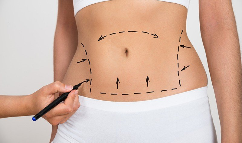Liposuction in Singapore: Here is Your Ultimate Guide