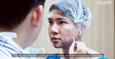 Dr Samuel Ho Plastic Surgery Review – @sanyojasper